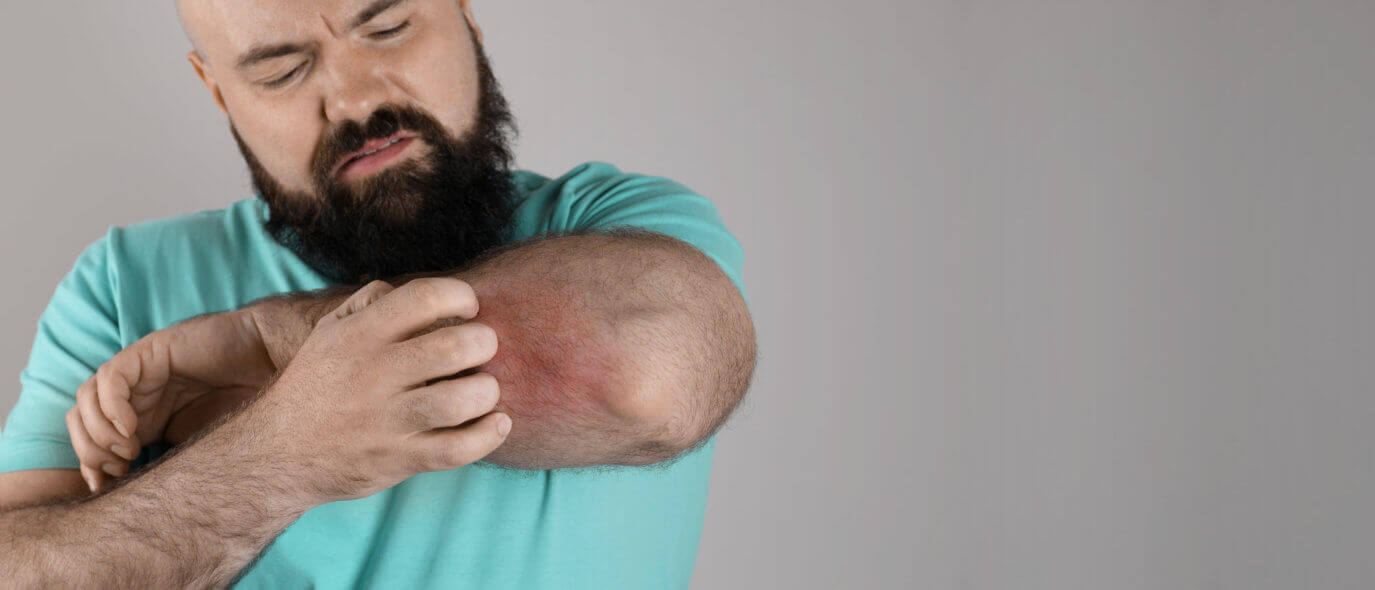 man scratching his elbow